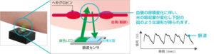 光電式容積脈波センサー